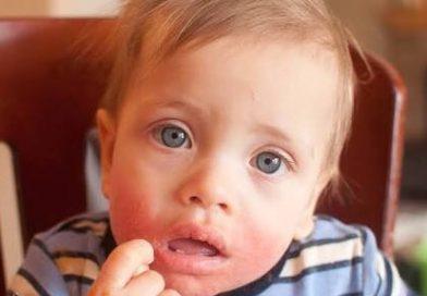 Çocuklarda Besin Alerjisinin Sebepleri Neler? Alerji Nasıl Önlenir?