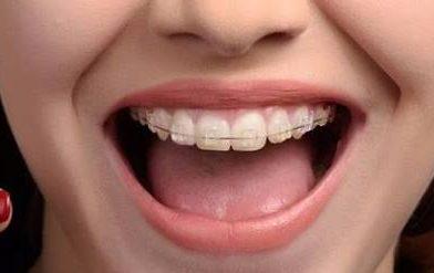 Diş Teli Zayıflatıyor mu?