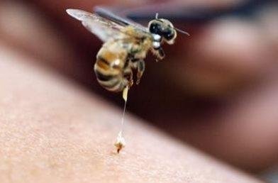 Böcekler Nasıl Sokarlar? Böcek Sokmasında Ne Yapılmalı?
