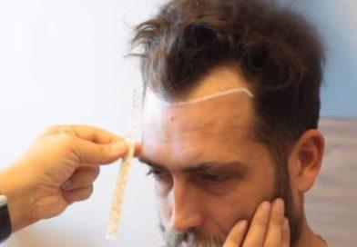 Saç Dökülmesi ve Saç Ekimi Yöntemleri